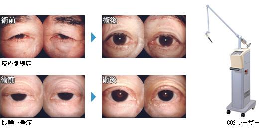 眼瞼下垂手術. 麦粒腫・霰粒腫手術